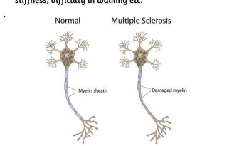 Reletion Between Multiple Sclerosis & Sleep (1)