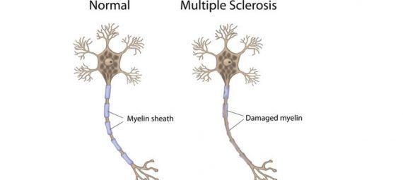 Reletion Between Multiple Sclerosis & Sleep (1)